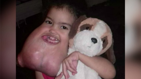 U.S. surgeons remove rare facial tumor from Brazilian girl