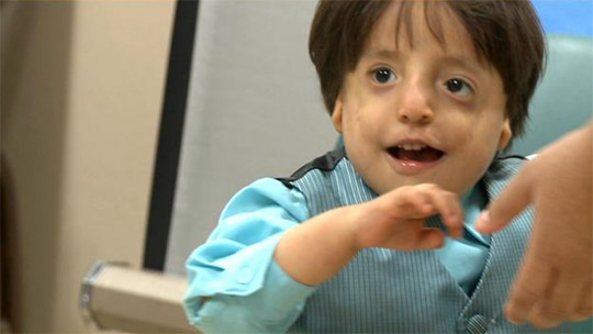 Surgeons reshape face of child with rare syndrome