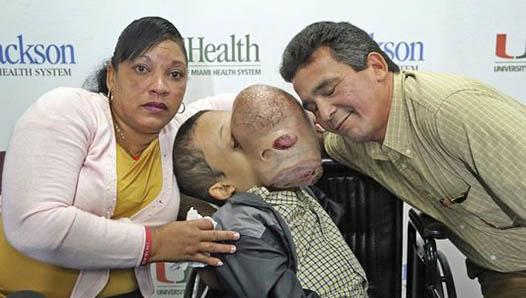 Florida doctors to remove 10-pound facial tumor that threatens to break boy's neck